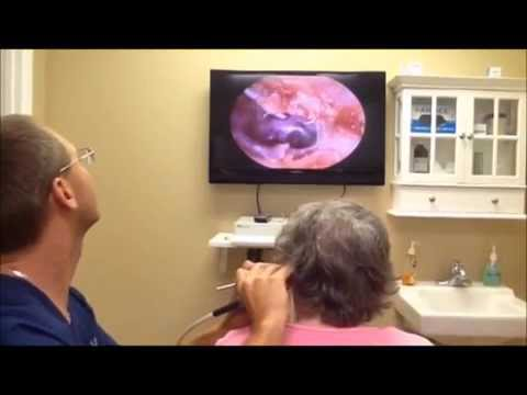 Demonstration of Audiologist removing ear wax to help hearing aid performance.